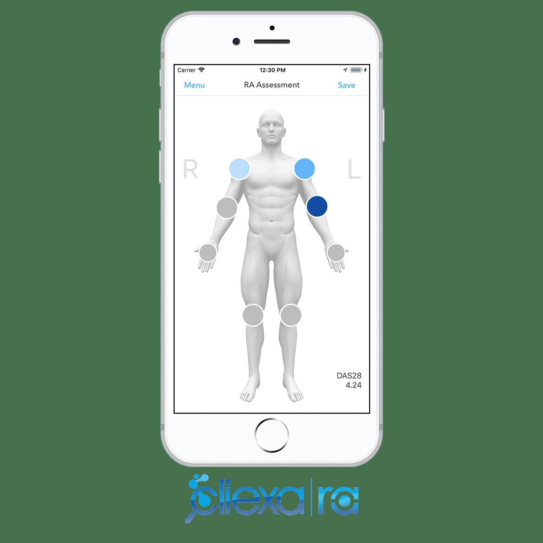 cliexaRA-Preview